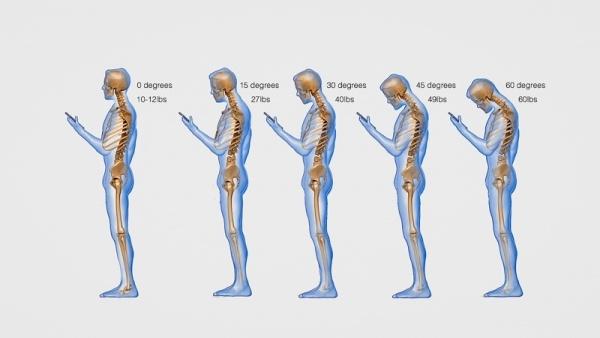slumpy smartphone posture