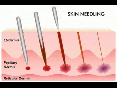 Dry needling: what's the difference with acupuncture ...