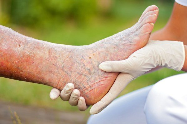 treating common foot problems