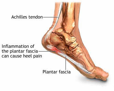 heel pain exercises